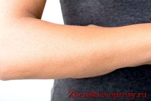Фото - Як утворюється гусяча шкіра і як її позбутися?