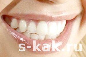 Фото - Як вдома відбілити зуби