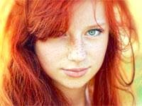 дівчина з пігментними плямами на обличчі