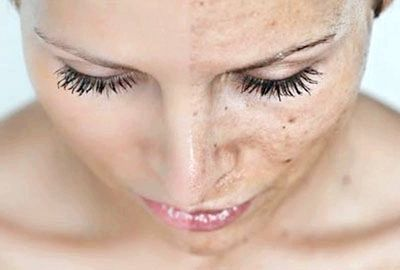 прибрати пігментацію на обличчі